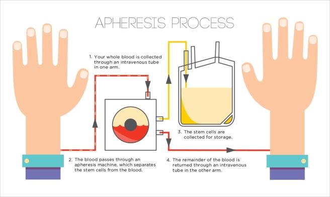 ApheresisProcess_Infographic